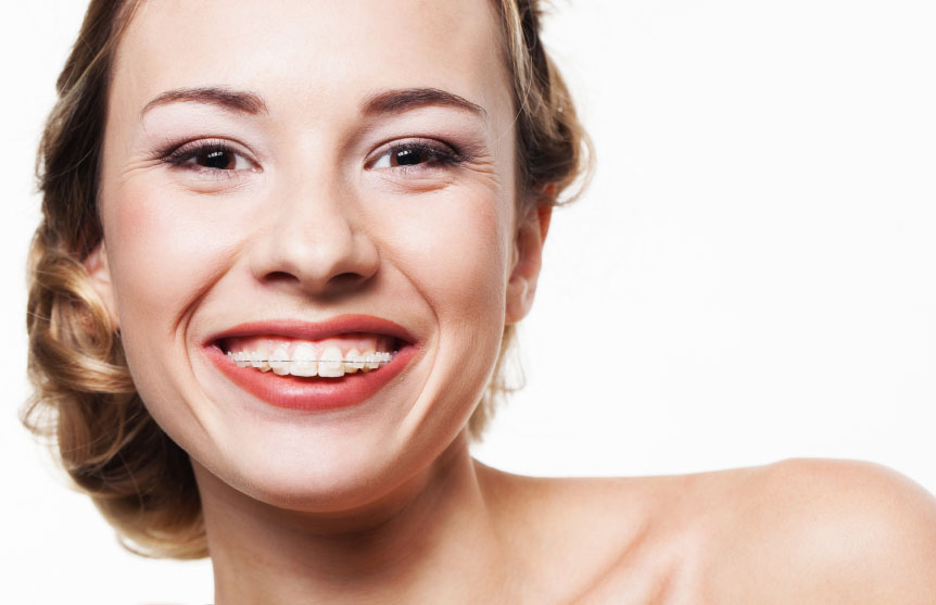 woman-with-clear-braces